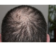 Male Pattern Hair Loss Treatment for Baldness