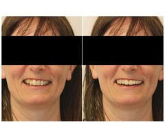 Digital Smile Design Treatment in Melbourne by Healthy Smiles